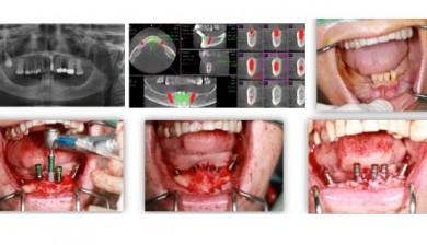 implantes de tantalio