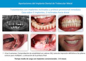 implantes tantalio